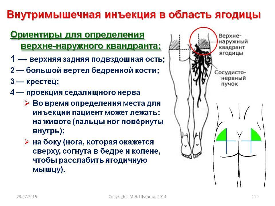 Как сделать укол в бедро самому себе: ставить внутримышечно в ногу, поставить правильно, куда колоть инъекцию, техника выполнения взрослому, мнение врачей, складки как у шарпея, подкожный в мышцу, почему болит после