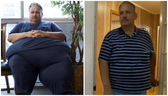 """""""до и после"""": как выглядят люди, похудевшие на 150 кг и больше – wi-fi.ru"""