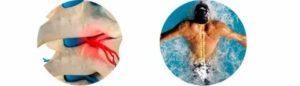 После плавания бассейне болит голова