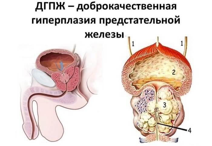 Повышенный пса при аденоме простаты: причины, норма и отклонения, советы медиков - cureprostate.ru
