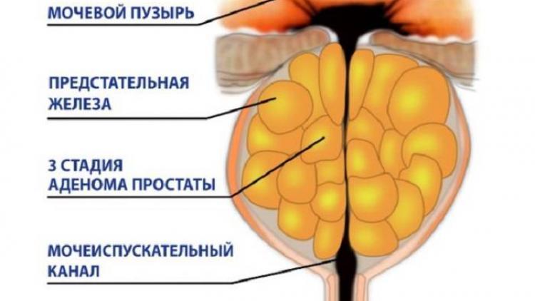 Аденома простаты. причины, симптомы, признаки, профилактика заболевания. лечение народными методами. показания, противопоказания к операции, виды операций, подготовка :: polismed.com