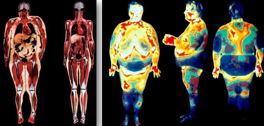 Почему жир откладывается на животе и как от него избавиться