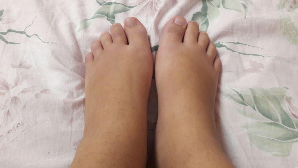 Почему возникает отечность ног в жаркую погоду?