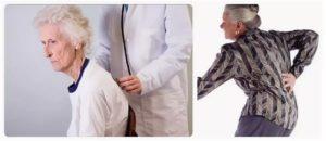 Остеопороз у пожилых людей: симптомы и лечение