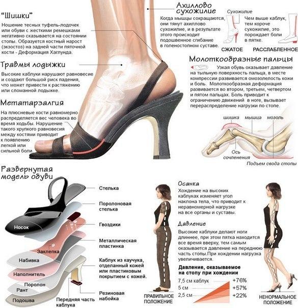 Почему носить каблуки вредно для здоровья?