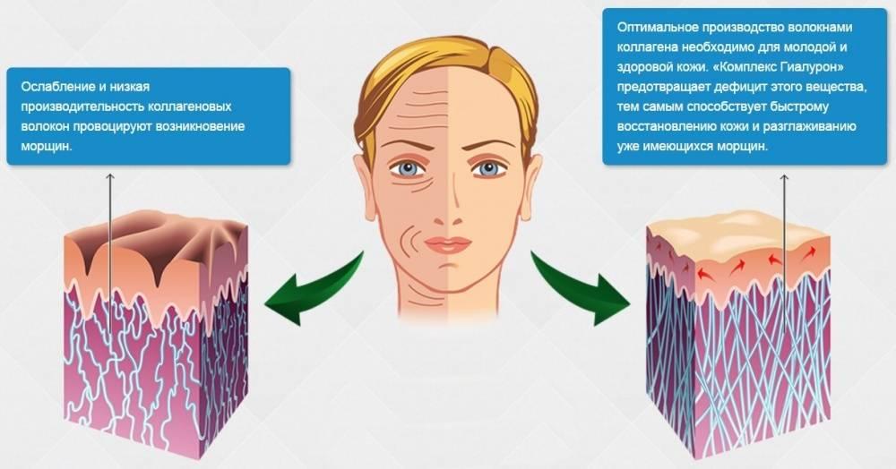 Гиалуроновая кислота для кожи: свойства, эффективность, польза и вред