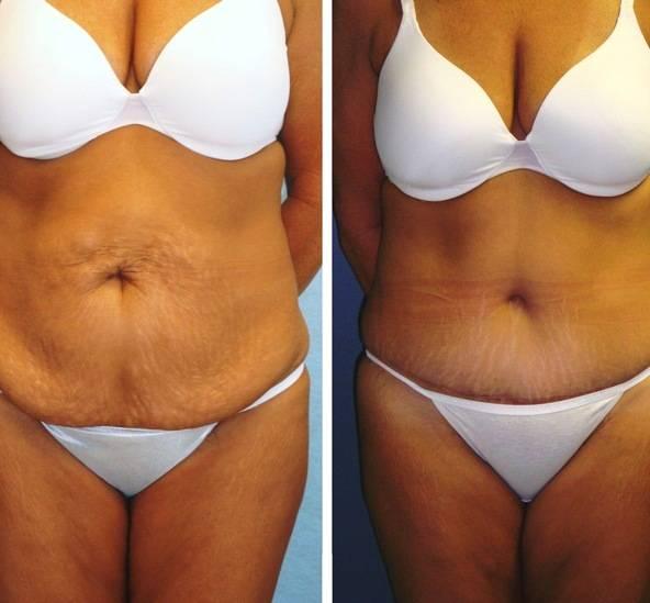 Как подтянуть обвисшую кожу после похудения в домашних условиях: с помощью упражнений, массажей, водных и других процедур