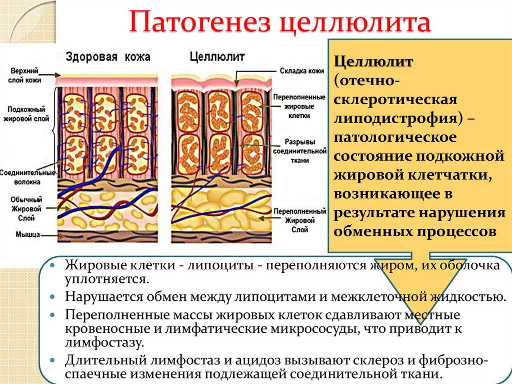 Причины целлюлита, причины возникновения и развития целлюлита