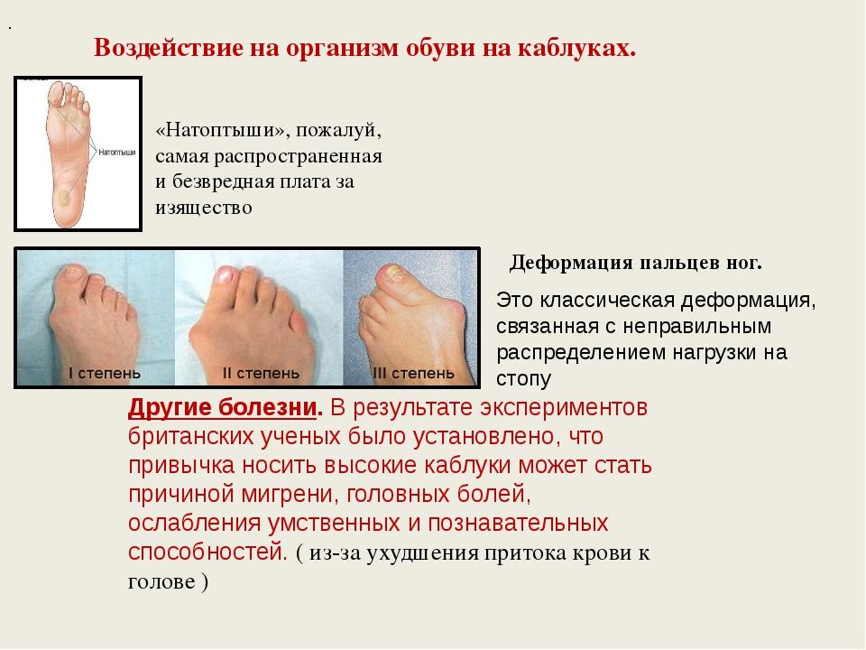 ✅ есть вопрос: как каблуки влияют на здоровье - медпортал63.рф