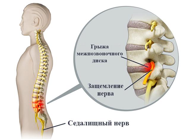 Защемление нерва в грудном отделе - причины, опасность, лечение