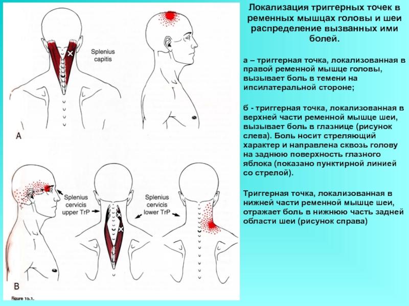 Мышцы шеи и головы: анатомия, таблицы и функции
