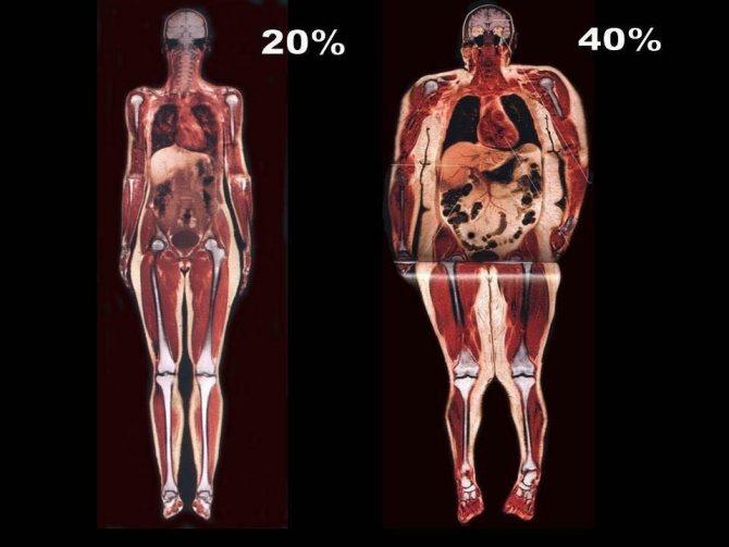 Лишний вес — это отёки и лишняя жидкость в организме | spagolod.ru