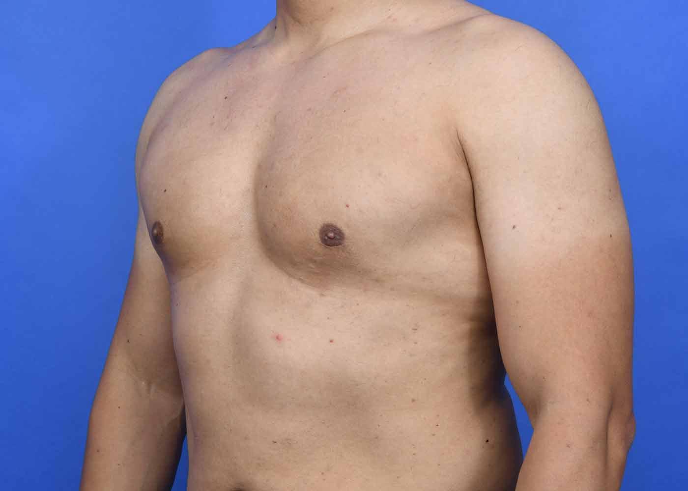 Гинекомастия у спортсменов и бодибилдеров после курса стероидов: что это, препараты, признаки, как избежать, лечение | романов георгий никитич