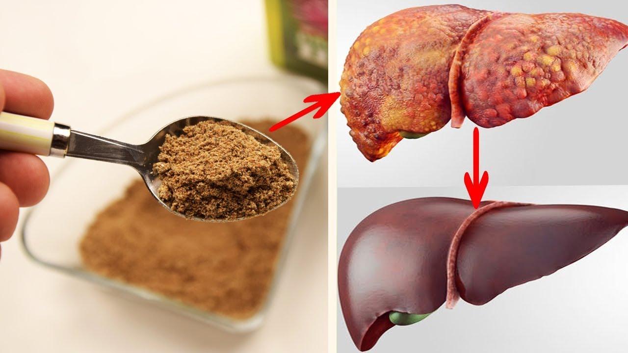Как почистить печень от шлаков и токсинов - эффективные лекарственные препараты и методы для очистки