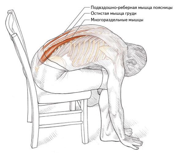 Синдром подвздошно-поясничной мышцы - симптомы и лечение