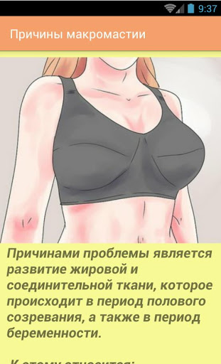 Как уменьшить грудь у женщин: полезные рекомендации и методы