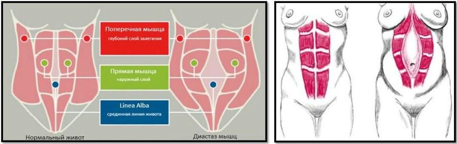 Как проявляет себя диастаз после кесарева, методы избавления от него