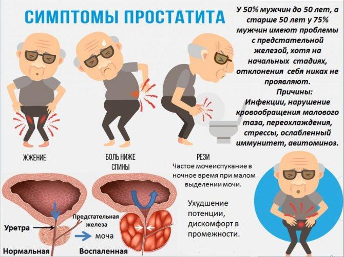 Аденома простаты: симптомы, лечение, операция – напоправку