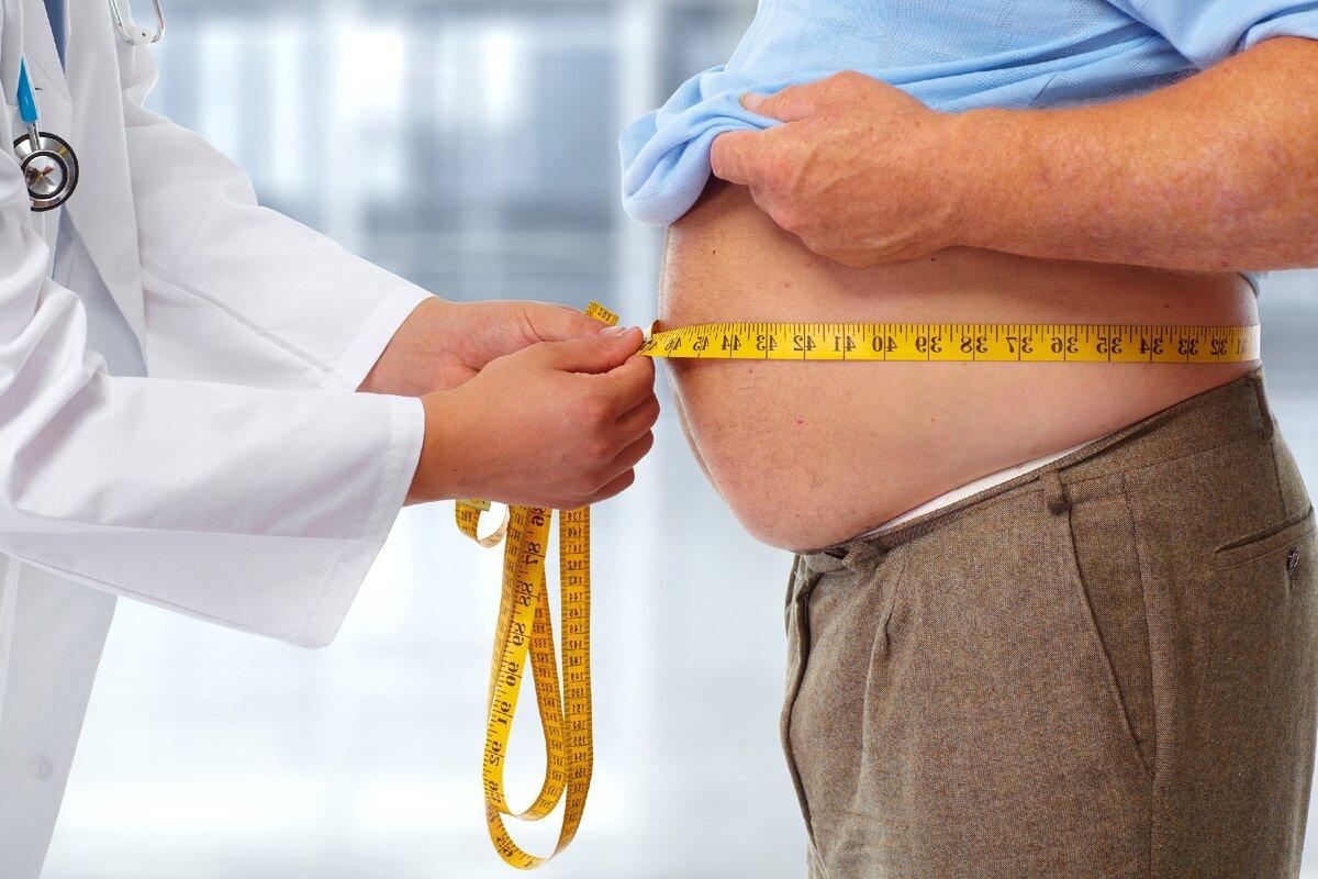 Ожирение (лишний вес) у детей и взрослых: причины, лечение и степени ожирения – напоправку
