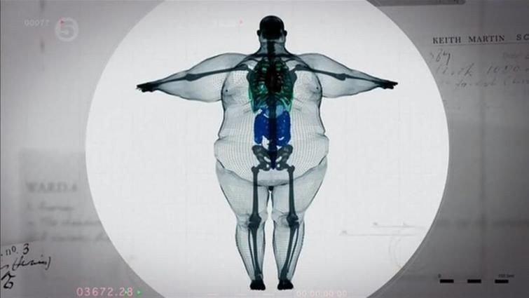 Как узнать тяжелые кости или нет