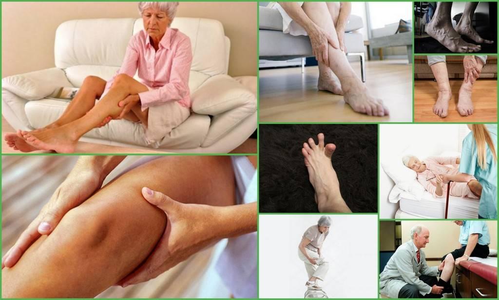 Судороги в ногах: причины, симптомы и методы лечения