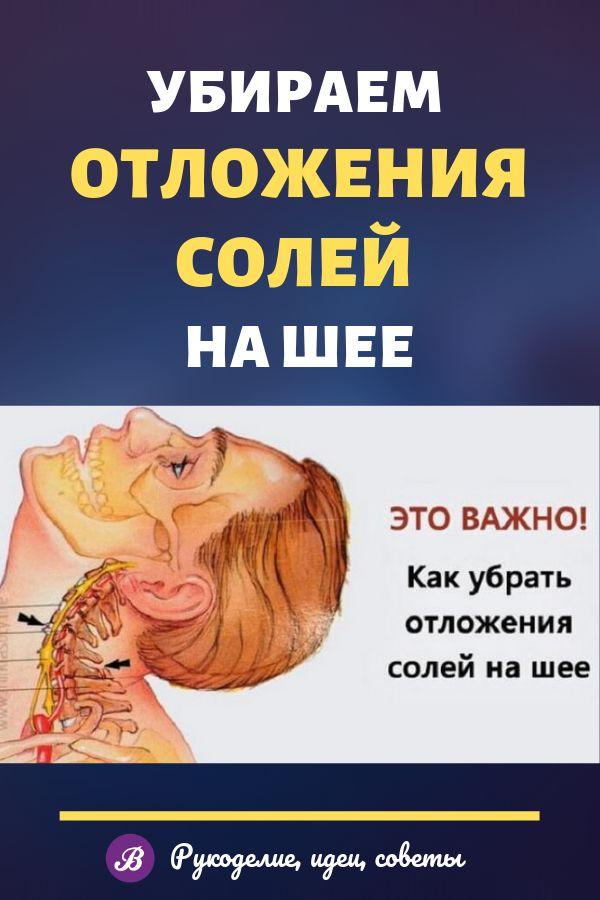 Отложение солей в шейном отделе: как вылечить горб на шее?