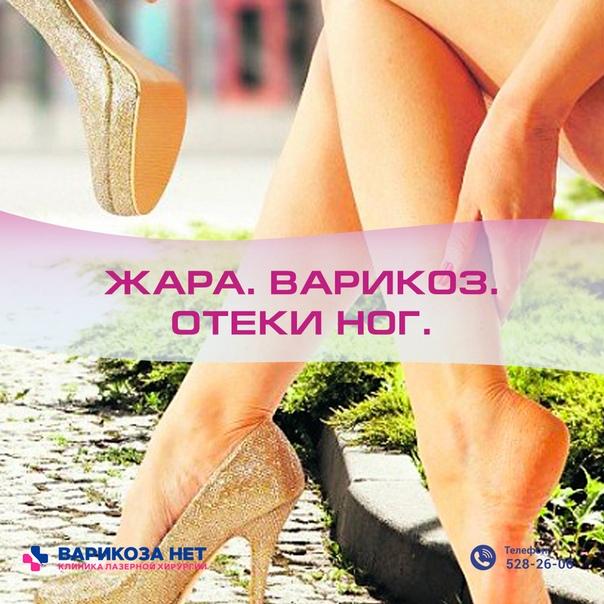 """Почему в жару отекают ноги: причины и профилактика — журнал """"рутвет"""""""