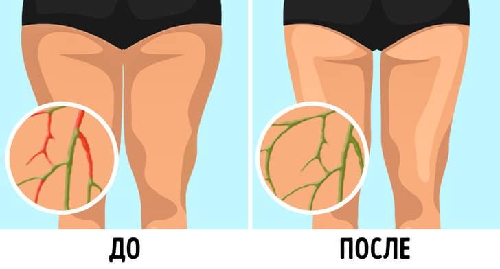 Лимфу не нужно разгонять, а упражнения для этого (а ля 100 раз подняться на носочки) — маркетинг