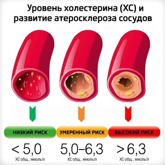 Уровень холестерина в крови от 6,0 до 6,9 ммоль/л - что это значит, нормы для женщин и мужчин по возрастам, что делать, чтобы снизить показатель до нормальных значений