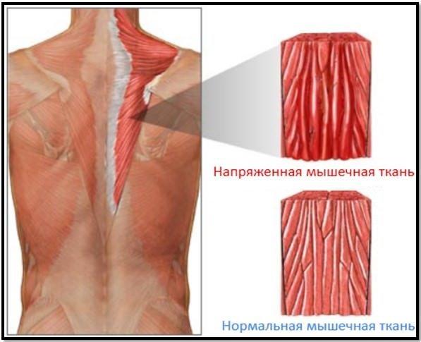 Как вывести из мышц молочную кислоту: до и после тренировки