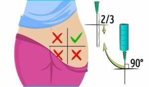 Как ставить укол в ягодицу правильно: куда вводить внутримышечную инъекцию